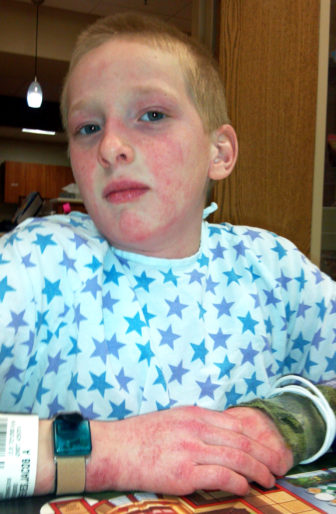 Jacob Reeves is shown in the hospital in 2014 while being treated for the extremely rare disease, juvenile dermatomyositis. During his treatment, Jacob received heavy doses of steroids, as well as an immunoglobulin treatment that combines antibodies from 1,000 different donors.
